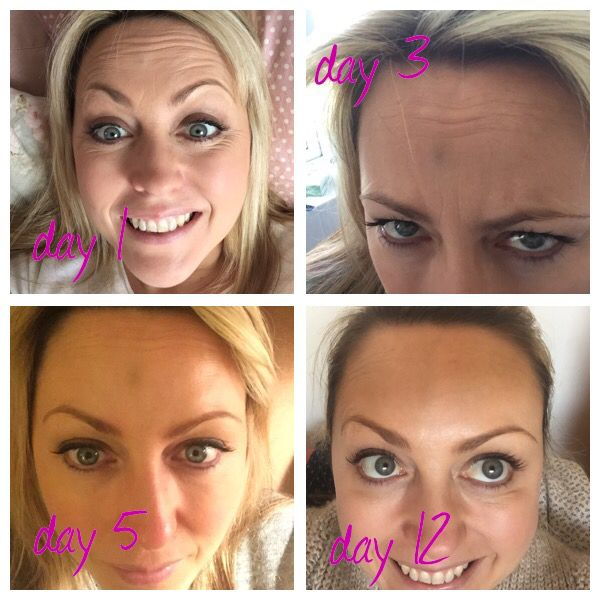 Botox results!