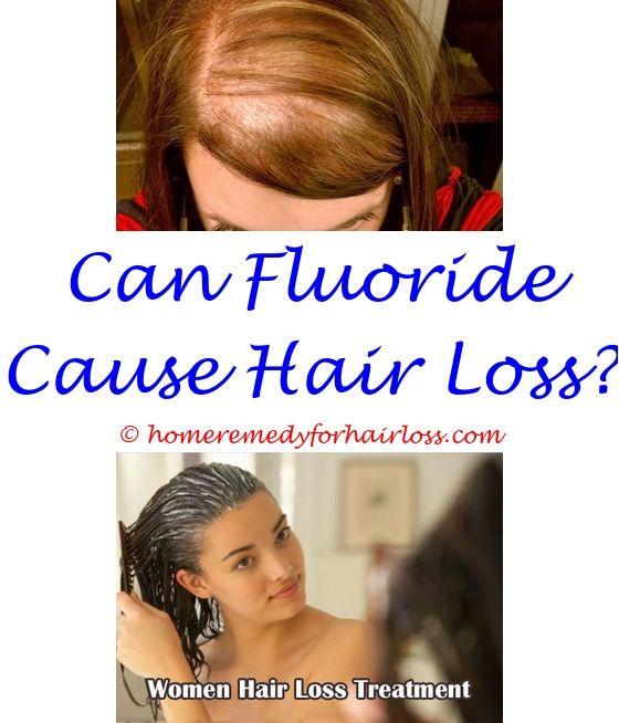 can propecia stop hair loss - shampoo to help stop hair loss.hair loss news august 2014 biotin can help reverse hair loss female hair loss reddit 9584723619