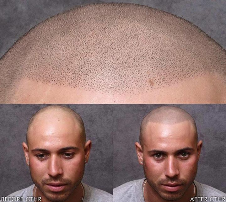 How Scalp Tattoos Are Empowering Men With Hair Loss | Beauty Secrets ...