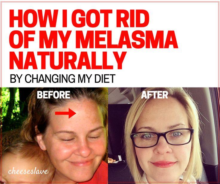 Neem and melasma