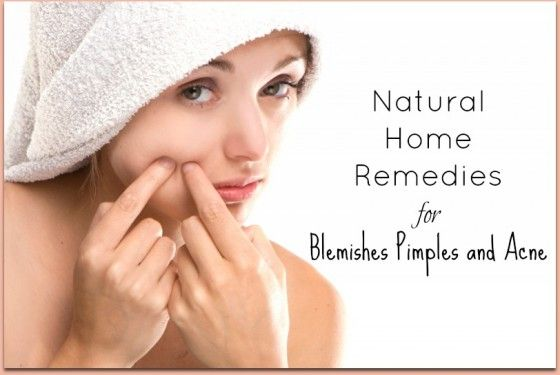Here are some essential oil treatments for blemishes.  Shared by www.facebook.com/HerbsAndOilsHub