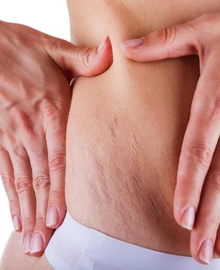 Remedies to Remove Stretch Marks