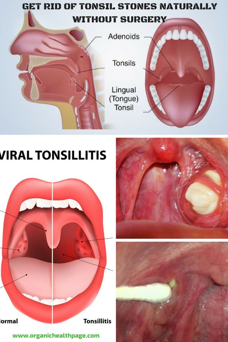 Get Rid Of Tonsil Stones Naturally Without Surgery