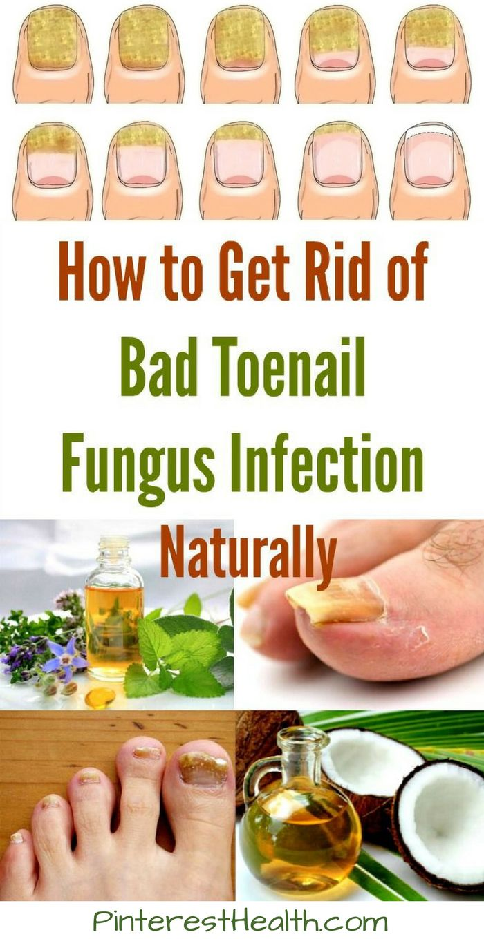 Dealing with fungus on your toenails or fingernails can be quite unpleasant. This fungus is typically caused by moisture being trapped in a dark, warm place.