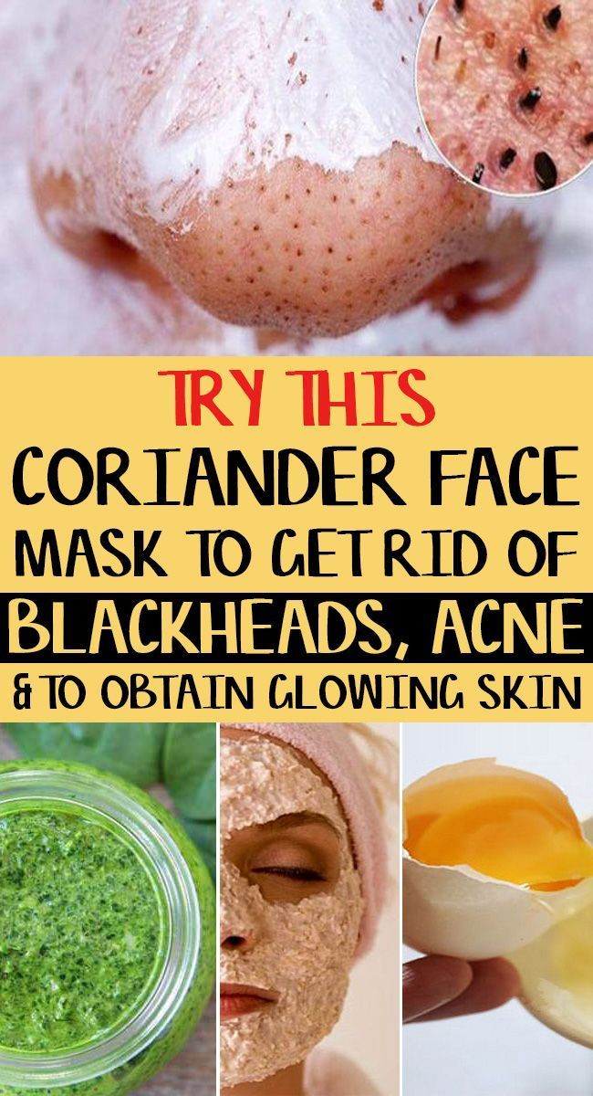 Coriander face mask for acne scars blackheads and …