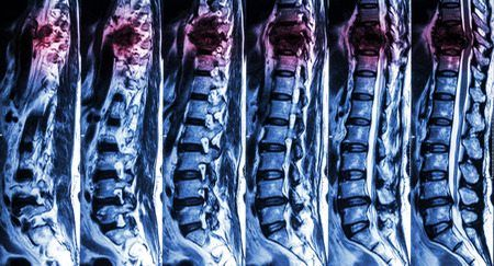 does retrolisthesis cause pain Retrolisthesis is the abnormal displacement of one vertebral body behind another, out of normal alignment, causing back pain and lower back pain home causes of pain.