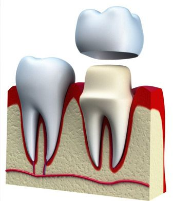 Crown lengthening is carried out to alter the gum margin of the tooth. A minimum width between gum margins and margins of fillings and crowns is critical to ensure long term gum health and aesthetics.   For more information visit our website or call us for a free appointment at 03 98171860 #MelbournePeriocare #DrNupurKataria #Periodontics #NoReferralRequired