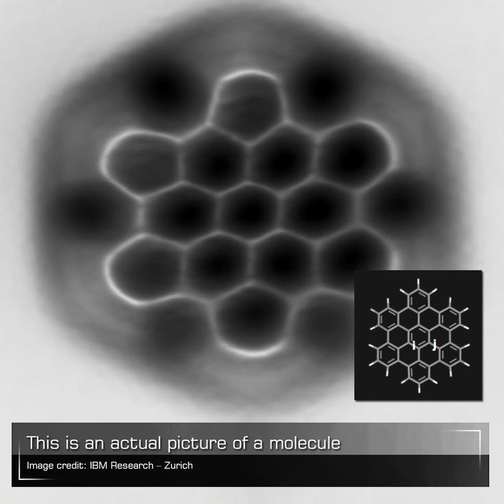 Using an atomic force microscope, IBM researchers were able to capture an actual image of a molecule. The image does not only illustrate the structure of individual nanographene molecule but also how atoms are bound together.