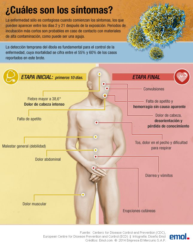 Síntomas del ébola #infografia