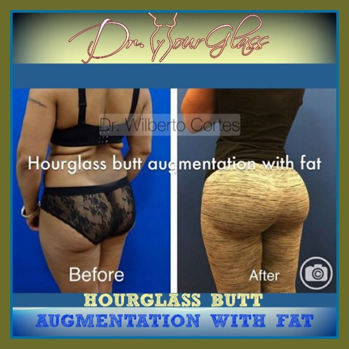 Hourglass Butt Augmentation fat transfer, by:  Dr. Cortes #drcortes #drhourglass