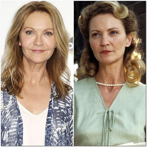 Joan Allen Plastic Surgery Before & After