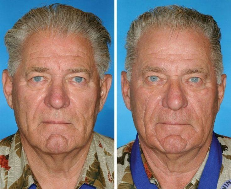 I ricercatori del dipartimento di Chirurgia plastica dell'università dell'Ohio hanno condotto uno studio che mostra i cambiamenti del viso causati dal fumo confrontando coppie di gemelli identici fumatori e non fumatori.