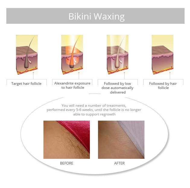 Brazilian Wax Photos Before And After