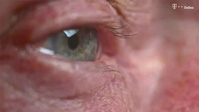"""""""Der Graue Star trifft im Alter jeden von uns"""", sagt Dr. Georg Eckert, Augenarzt und Pressereferent des Berufsverbandes der Augenärzte Deutschlands (BVA). Dann kristallisieren die in der Augenlinse befindlichen Eiweiße aus und trüben den Blick des..."""