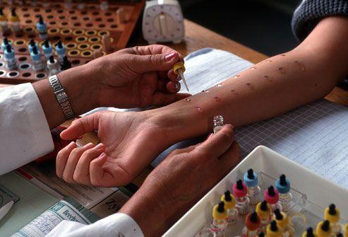 Alergi :  16 Penyebab, Gejala Dan Cara Pengobatan Tradisional - http://www.njamu.com/alergi-penyebab-gejala-dan-cara-pengobatan-tradisional/