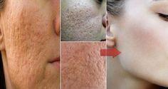 Com estas receitas, você vai diminuir os poros do seu rosto e gastando quase…
