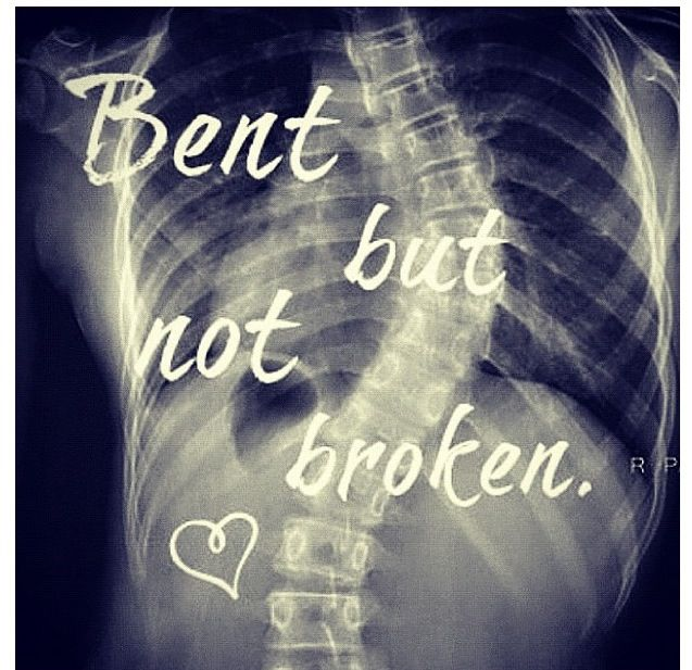 Scoliosis   my back   Pinterest Quotes About Falling Apart