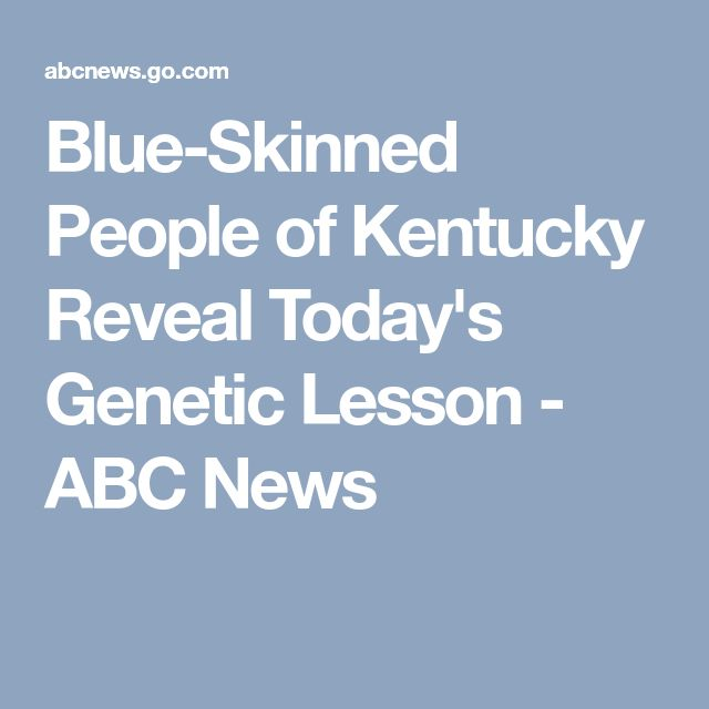 Blue-Skinned People of Kentucky Reveal Today's Genetic Lesson - ABC News