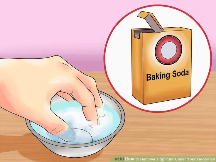 How to Remove a Splinter Under Your Fingernail: 10 Steps