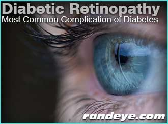 Diabetic retinopathy is the most common complication of diabetes that affects the eyes and affects over 5.3 million Americans, 18 years old or older.