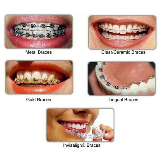 Dentaltown - 5 Different Types of Braces.