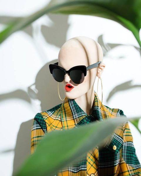 Мелани Гайдос: беззубая лысая девушка стала востребованной моделью https://joinfo.ua/showbiz/1209546_Melani-Gaydos-bezzubaya-lisaya-devushka-stala.html