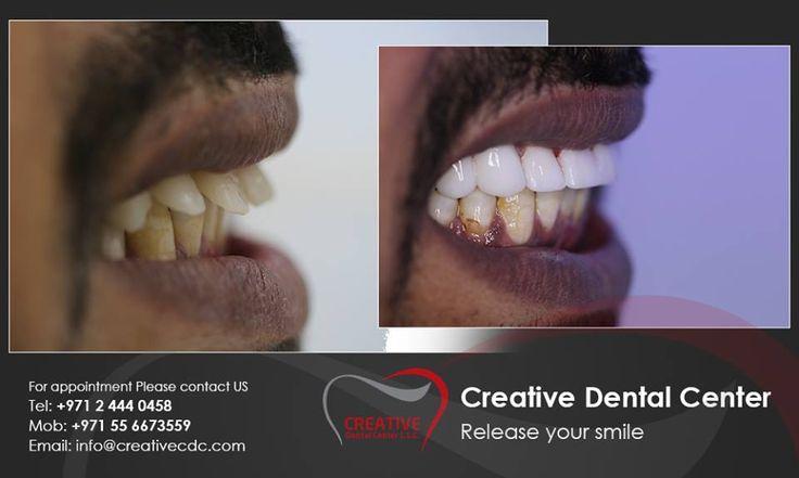 Creative Dental Center the elite dental center with the latest technology to simply help unleash your smile! مركز كريتف لطب الآسنان هي العيادة الوحيدة و الحصرية التي تقدم الخدمات العلاجية الراقية من آجل إطلاق جمال إبتسامتك! info@creativecdc.com 02 444 0458 http://www.creativecdc.com - #creative # dental #center #Hollywood #smile #veneer #lumineer #bleaching #aesthetic #dentistry #unleash #your #smile   كريتف #طب #الأسنان #تقويم #زراعة #تجميل#  #فينير #ابتسامة هوليود# سمايل