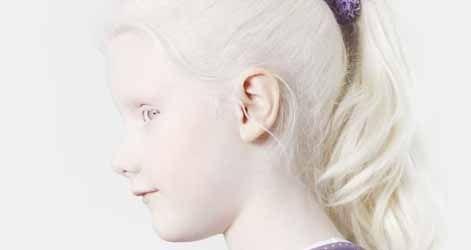 Pelle bianco latte, capelli chiari. E occhi altrettanto chiari che faticano ad adattarsi alla luce del sole. Gli albini in tutto il mondo sono vittime dei pregiudizi, della supertstizione, e dell'emarginazione sociale, discriminati in famiglia, a scuola, e nel lavoro. In Africa sono i ''neri bianchi''...