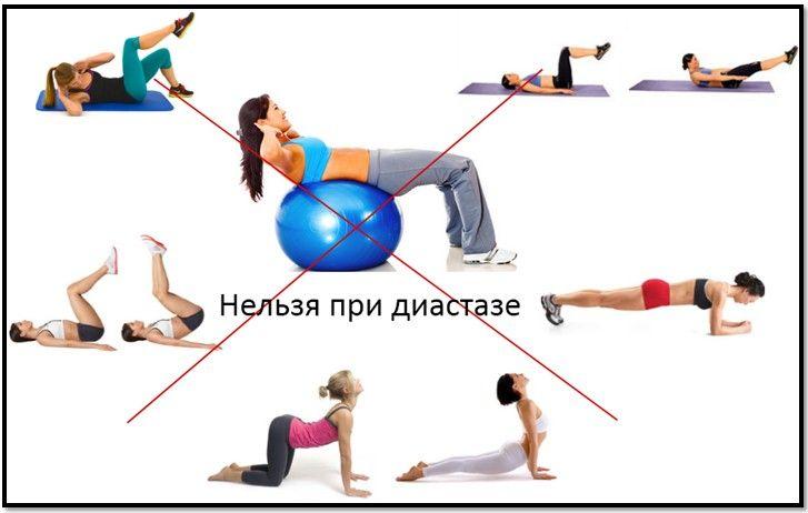 Упражнения при диастазе которые нельзя выполнять