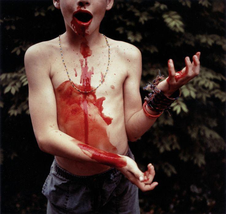 Sally Mann - Bloody Nose, 1991