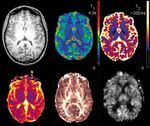 What does the future hold for MRI?