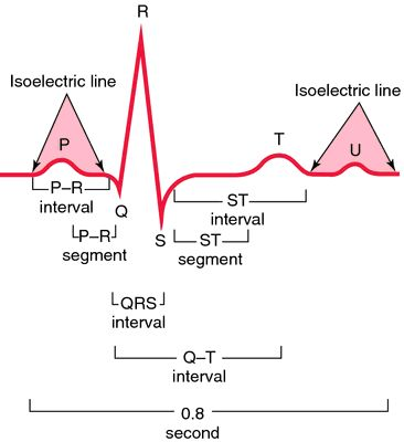 Electrocardiogram | definition of Electrocardiogram by Medical dictionary