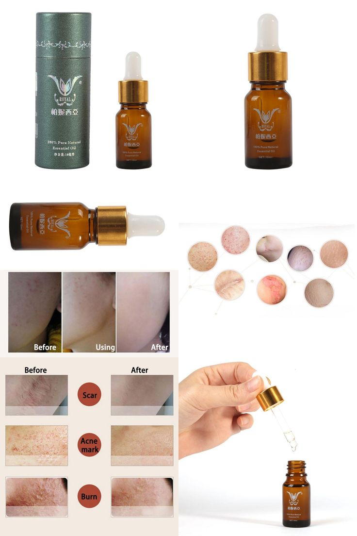 [Visit to Buy] Repair Essential Oils Skin Care Remove Dead Skin Bumps Pimples Folliculitis Beauty maquiagem Anti-Ance Acne Marks Essence Oil #Advertisement