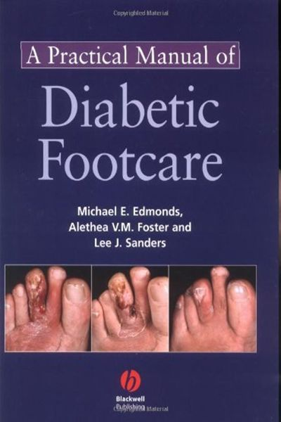 Learn About Our Outstanding Diabetic Foot Care Manual Guide