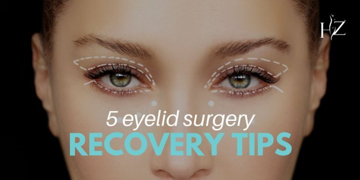5 Eyelid Surgery Recovery Tips