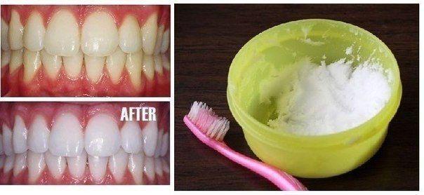 Выдавите немного зубной пасты в небольшую емкость, добавьте: - 1 ч.л. пищевой соды, - 1 ч.л. перекиси водорода - 0,5 ч.л. воды. Тщательно смешайте ингредиенты и нанесите на зубную щетку, чистите зубы 2 минуты 1 раз в неделю. Использовать данный рецепт можно несколько раз в год, по 1-1,5 месяца, затем нужно делать перерыв.