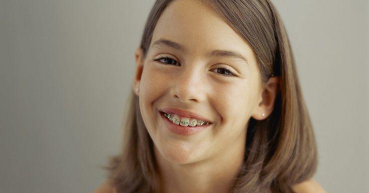 ¿Cómo encontrar un tratamiento de ortodoncia económico?. ¿Estás pensando en arreglar tus dientes? En los Estados Unidos, dos años de tratamiento de ortodoncia cuestan entre US$5.000 y US$10.000. El costo del tratamiento varía dependiendo de muchos factores, entre ellos el tipo de frenillos que necesites, la condición de tus dientes, la zona en que vives, la experiencia del ortodoncista, etc. Los ...