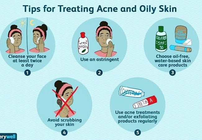 Ayesha On Instagram Skincare For Oily Skin Must Read If You