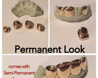 Permanent Gold Teeth | Individual Gold Caps | Custom Gold Fronts No Dentist Needed