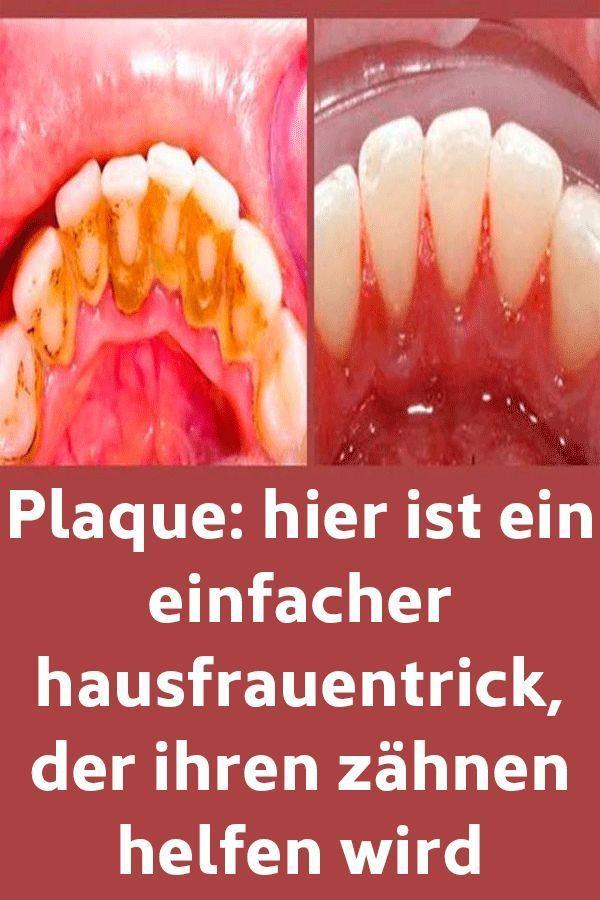 Plaque: Hier ist ein einfacher Hausfrauentrick, der Ihren Zähnen helfen wird  #…
