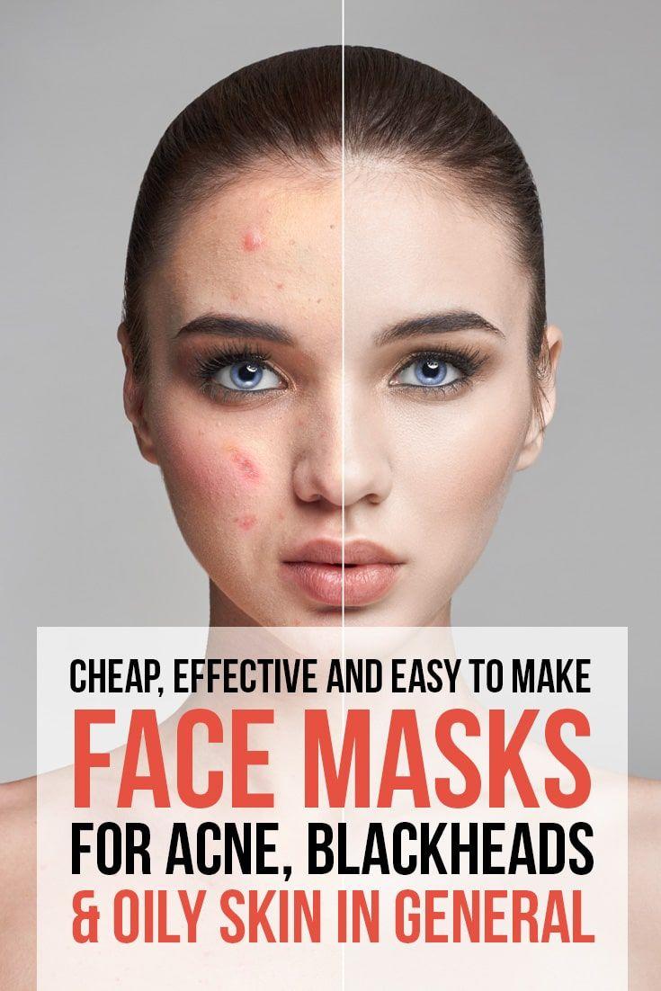 Best DIY Homemade Face Masks for Blackheads, Acne & Oily Skin
