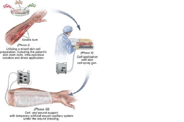 """GENIO Italiano Giuseppe Cotellessa: """"Skin Gun"""" Uses Autologous Skin Cells to Heal Seve..."""