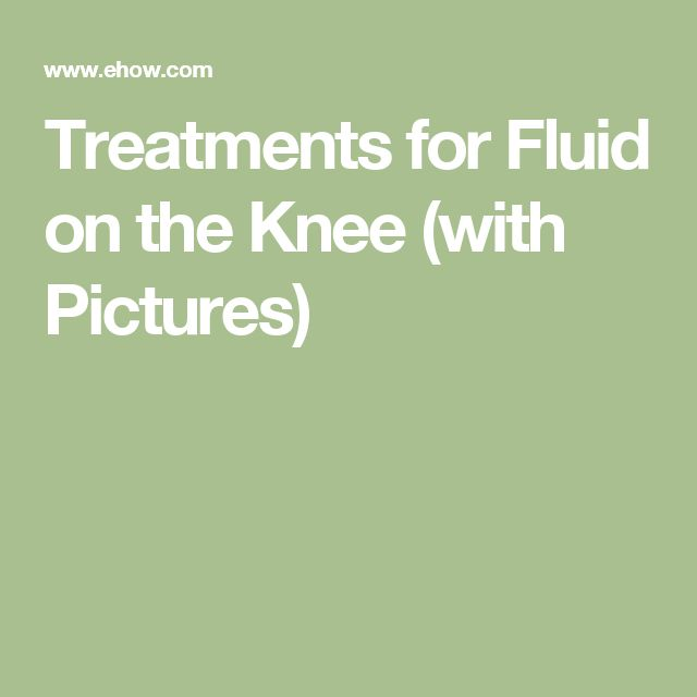 Treatments for Fluid on the Knee (with Pictures)