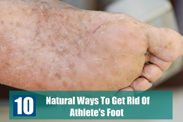 Can Dogs Get Athlete S Foot