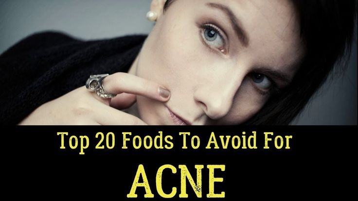 Top 20 Foods To Avoid For Acne