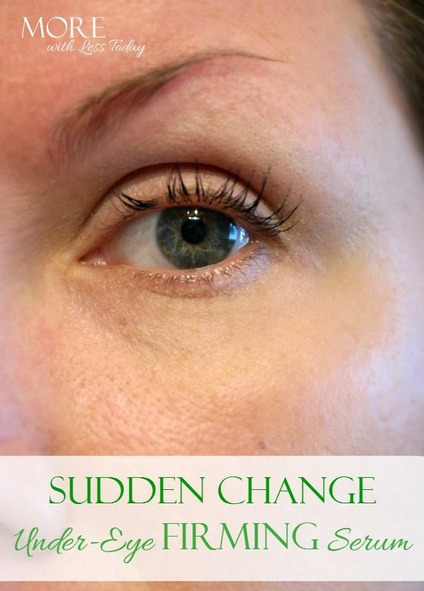Sudden Change eye serum. See before and after photos for a noticeable lift for under-eye issues. #ad #InstantRetouchwithSuddenChange