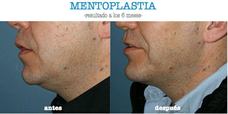 Aumento de mentón mediante implante mandibular.  http://www.drguilarte.com/es/rostro/mentoplastia.html