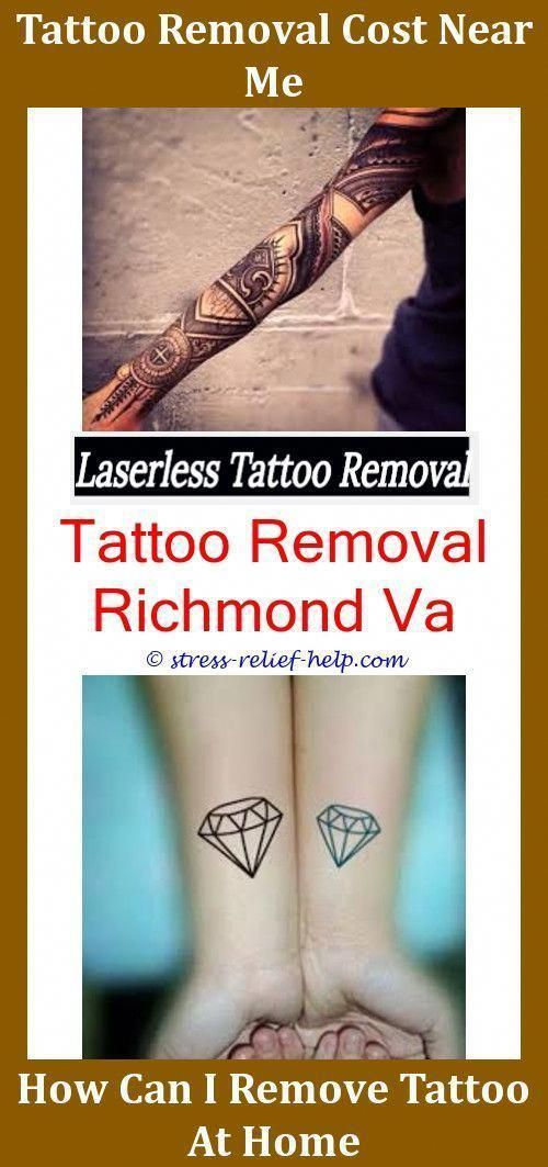 Is Getting A Tattoo Removed Painful,book tattoos can a brand new ...