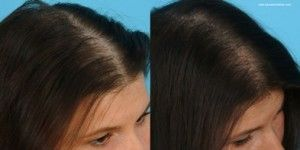 Biotin Hair Growth Pills Before After
