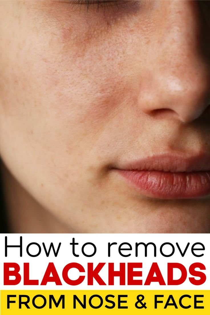 Today I will share an amazing remedy to remove blackheads